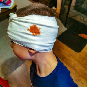 Uraz głowy u dziecka
